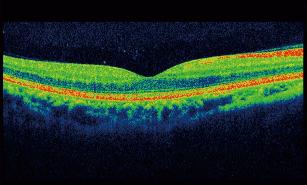 Eye Scan Image